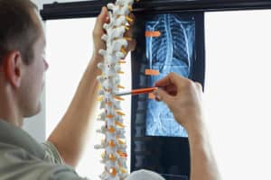Most Common Spine Injuries from Car Accidents